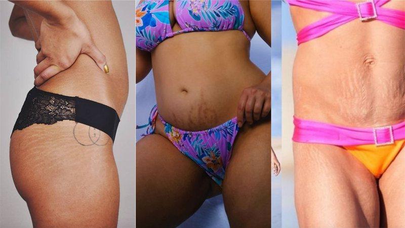 As estrias estão presentes em todos os tipos de corpos; será que é possível eliminá-las? Roseli Siqueira responde!