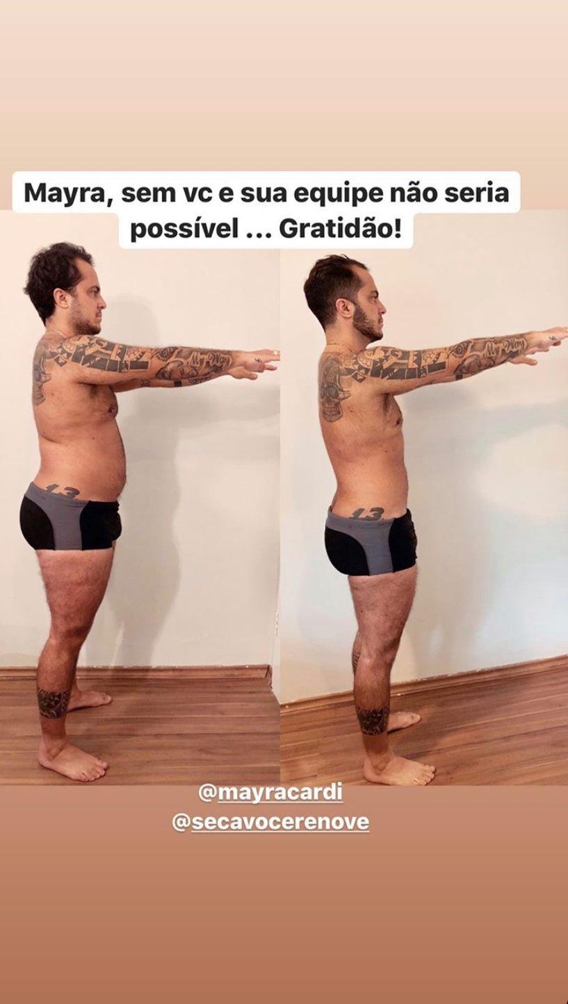Corpo de Thammy Miranda após tratamento de Mayra Cardi
