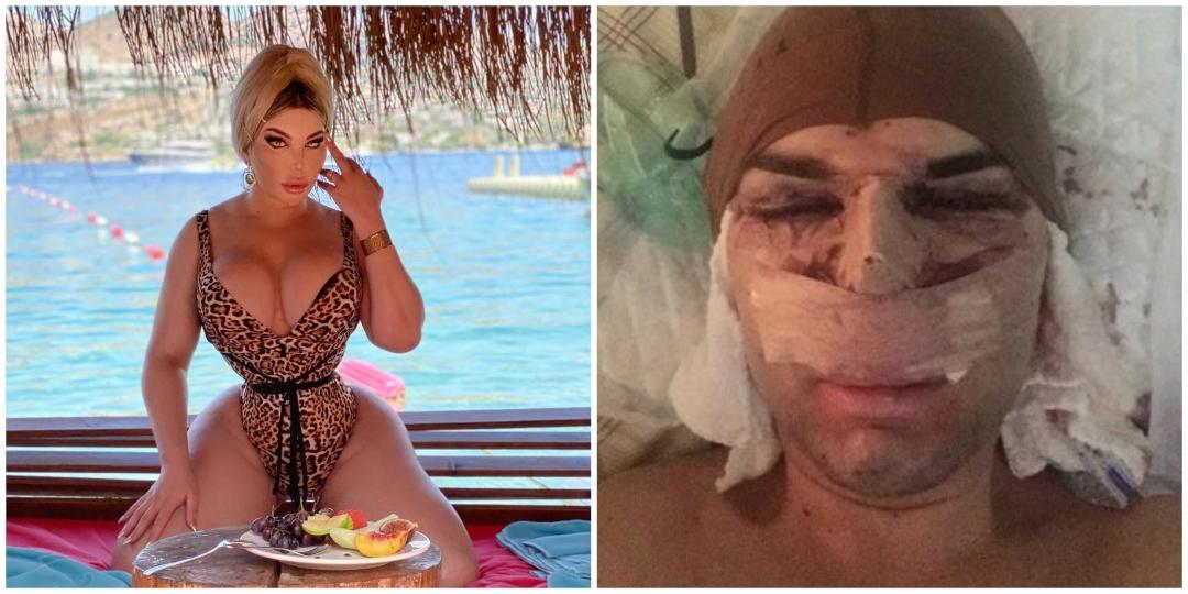 Ex-Ken Humano após cirurgia no nariz dar errado