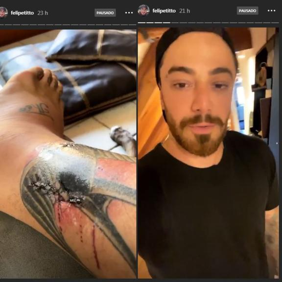 Felipe Titto teve perna infeccionada após levar mordida de cachorro