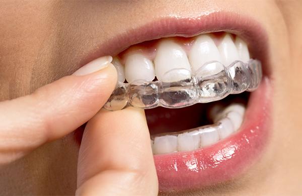Alinhadores dentários chegam para deixar o sorriso ainda mais bonito
